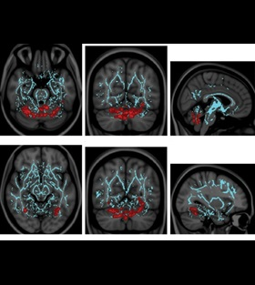 magnetic-resonance-imaging-cv