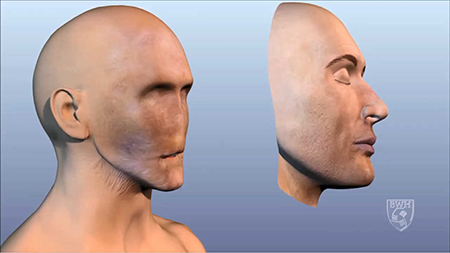 Changes that happen after full face transplantation