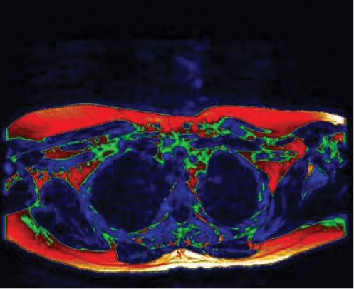 """The first MR imaging study to show """"brown fat"""" in a living adult"""