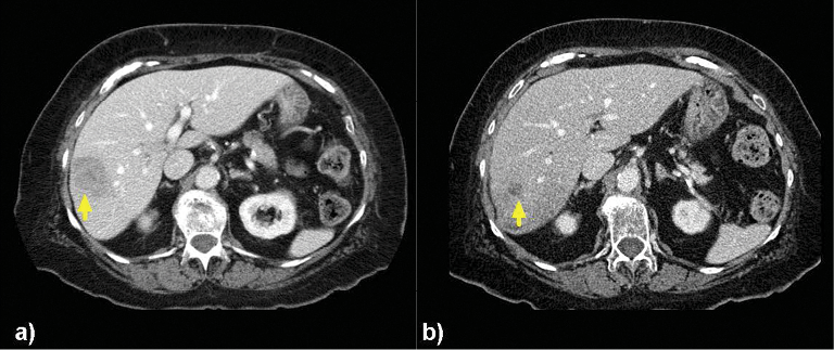 (a) Images of an 82-year-old woman with a solitary tumor in the right lobe measuring 4.5cm x 3.3 cm. (b) CT 5 months later demonstrated a reduction in bidimensional size to 1.3 cm x 1.3 cm after two right-lobar treatments at 93Gy subsequently followed by 119Gy. This patient had isolated liver metastases and remained free of extrahepatic disease 666 days after the first Y-90 treatment.