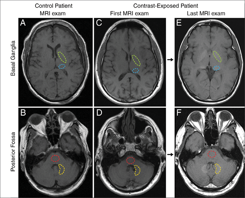 In June 2015 Radiology research, Robert McDonald, M.D., Ph.D., and colleagues set out to determine if repeated intravenous exposures to gadolinium-based contrast agents (GBCAs) are associated with neuronal tissue deposition.