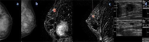 Figure 2: Mammography and MR imaging in a 48-year-old woman with high risk for breast cancer.