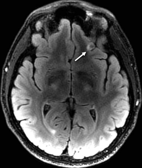 Figure 3. Axial T2 FLAIR image with small focus of encephalomalacia—the softening or loss of brain tissue—and gliosis in the inferior left frontal lobe (arrow) in a 26-year-old man with blast-related mild TBI.