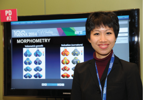 Dr. Ho with her RSNA 2014 research.