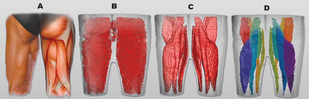 The posterior view of segmented muscles and fiber tractography.