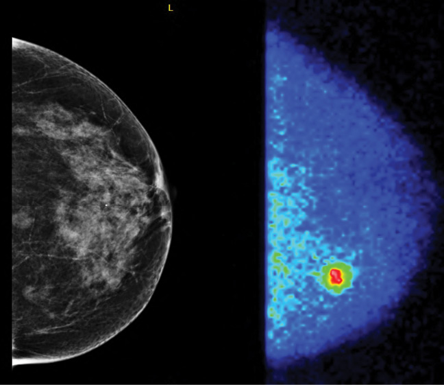 A patient with negative mammogram, molecular breast imaging (MBI) positive.