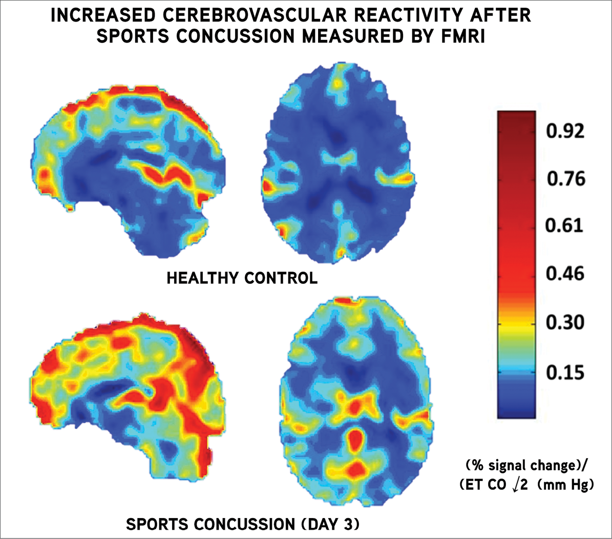 In research presented at RSNA 2014, authors demonstrated that cerebrovascular reactivity (CVR) measured by functional MRI (fMRI) was increased in the first few days after sports concussion compared to healthy, age-matched control subjects.
