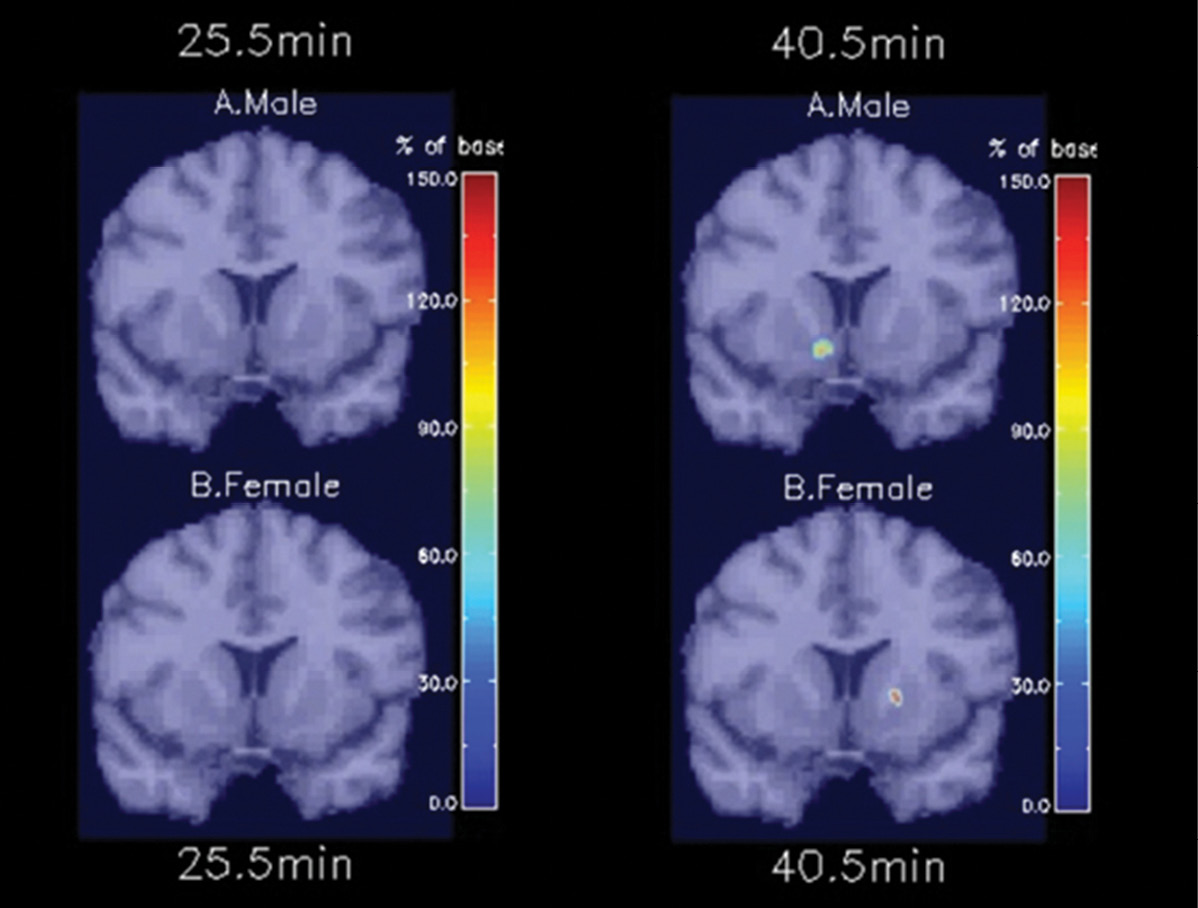 Demonstrating that smoking-induced dopamine activation occurs in a different brain region and much faster in nicotine-dependent men than women
