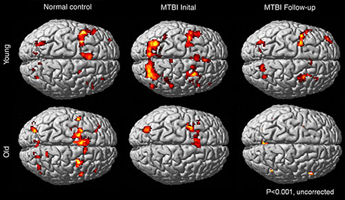 Different working memory activation patterns in healthy control subjects and young and old patients with mild traumatic brain injury.