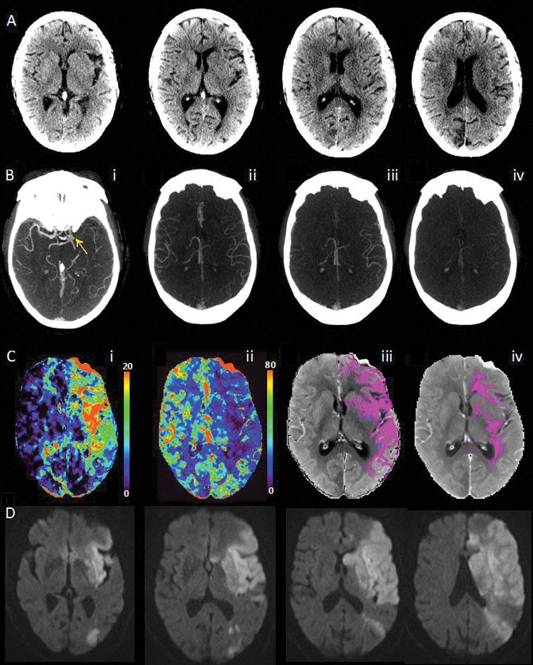 Multimodal CT images obtained 2 hours 18 minutes after symptom onset in an 87-year-old woman with an NIH Stroke Scale of 15 and left hemisphere symptoms.