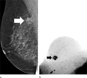 Figure 1. Images in 65-year-old breast cancer screening participant with a suspicious lesion (arrow) at screening mammography.