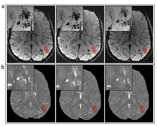 A, susceptibility-weighted imaging and, B, quantitative susceptibility mappingimages show the evolution of microhemorrhages (arrows) in a patient who underwent follow-up imaging.