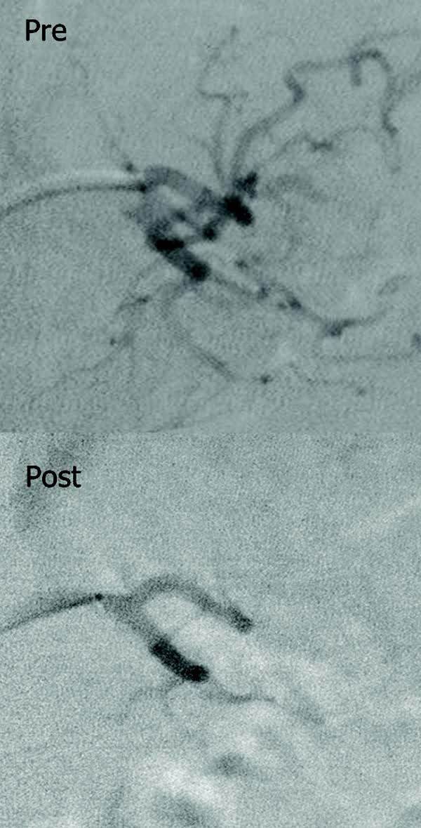 Pre-and post-bariatric embolization images of the main trunk of the left gastric artery in a morbidly obese diabetic patient.