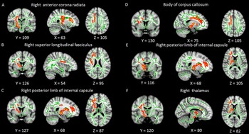Significant WM clusters obtained from tract-based spatial statistics between primary insomnia and HC groups.
