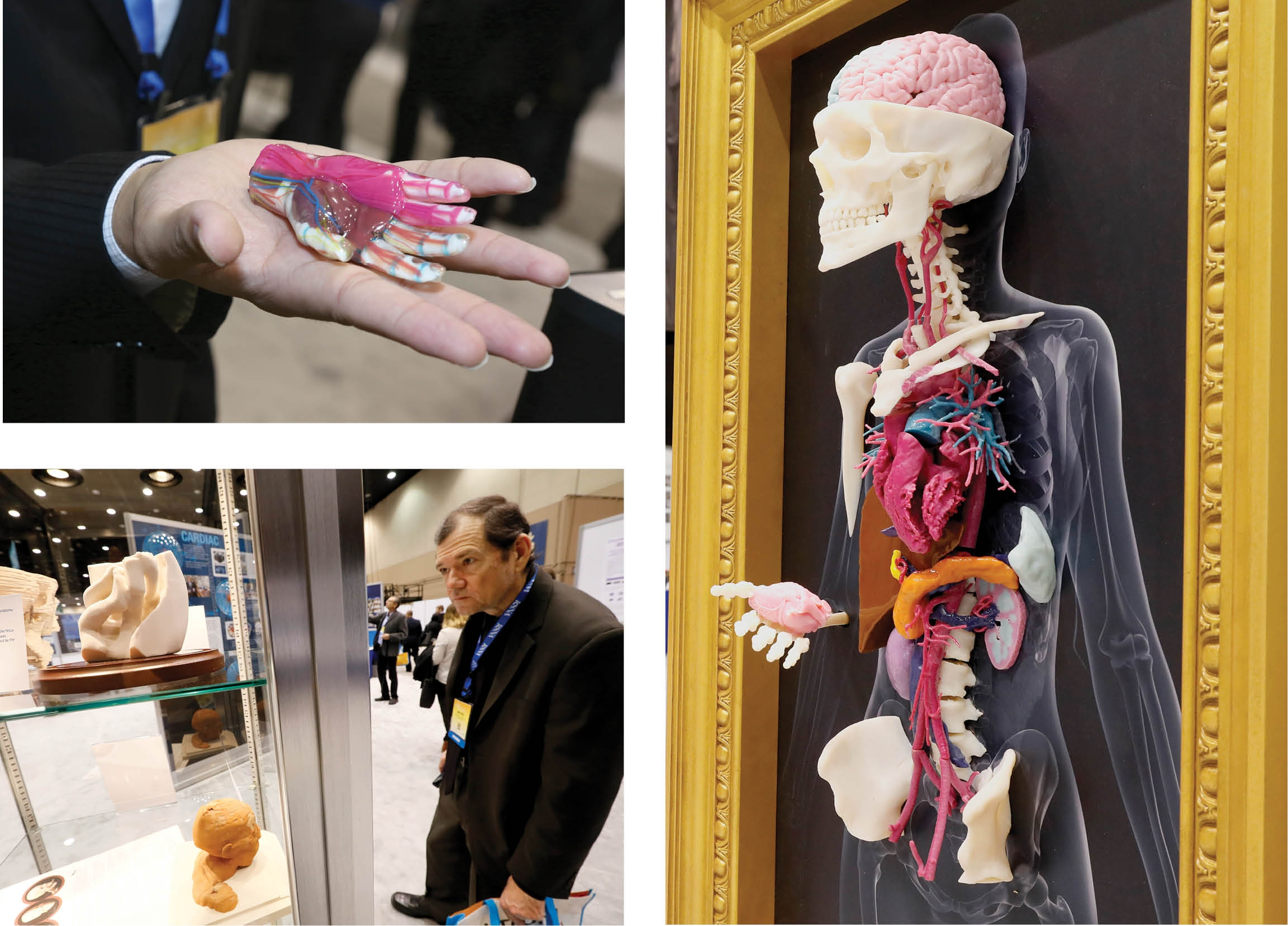 The 3-D Printing in Medicine exhibit at RSNA 2016