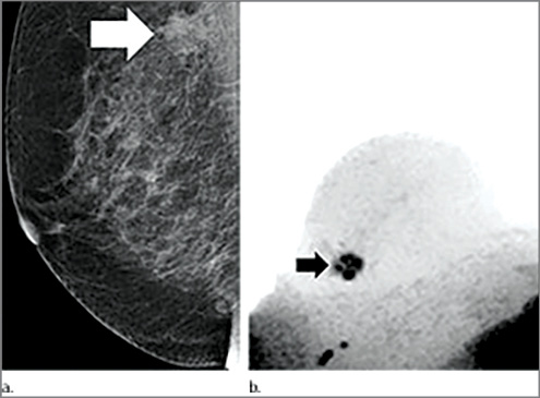 Images in 65-year-old breast cancer screening participant with a suspicious lesion (arrow) at screening mammography.