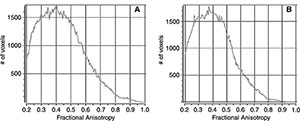 Sample histograms for, A, a control subject and, B, a patient with mild traumatic brain injury.