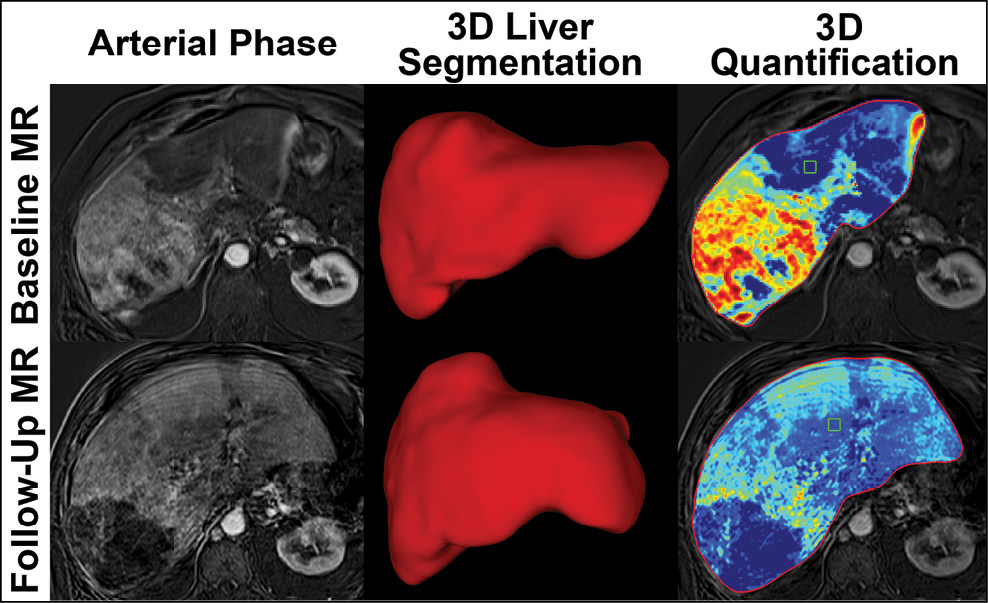 Liver images captured before (top row) and after (bottom) treatment.