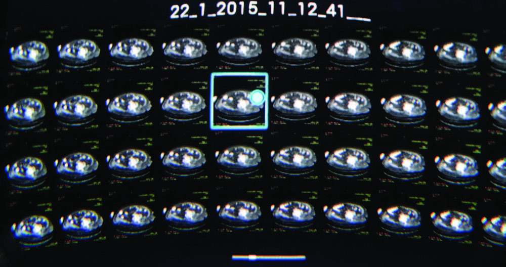 A screenshot displays a CT examination in the virtual reality system.