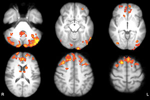 Axial statistical maps show areas of reduced thalamic functional connectivity (FC) in patients with MS compared with that in healthy subjects.