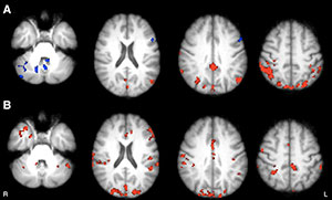 Axial functional connectivity (FC) maps show changes in thalamic FC after 8 weeks in both groups of patients with MS. Areas of increased FC are represented in red, areas of reduced FC in blue.
