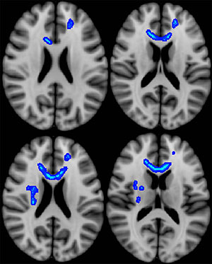 Blue indicates regions of the brain in which lower fractional anisotropy (a measure of microstructural integrity) correlated with more severe neurobehavioral symptoms.