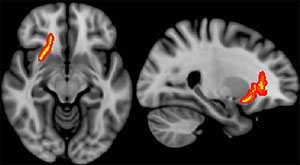 Red/yellow indicates regions of the brain in which fractional anisotropy correlated with time since most severe TBI event.