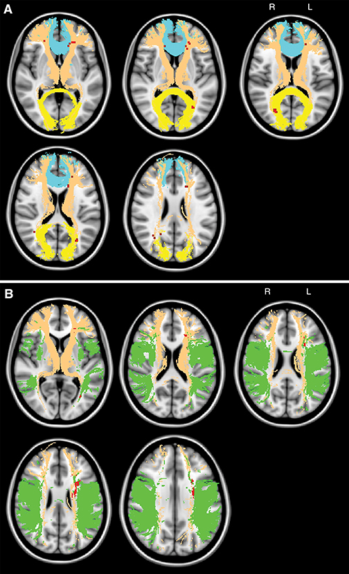Maps show the topography of chronic ischemic lesions associated with global cognitive impairment.
