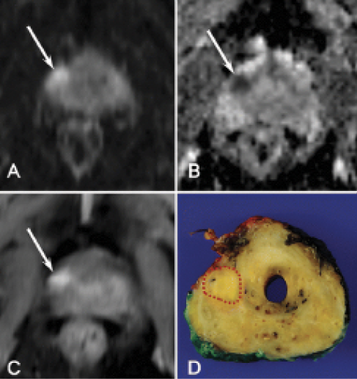 Images in a 74-year-old man with clinically significant prostate cancer