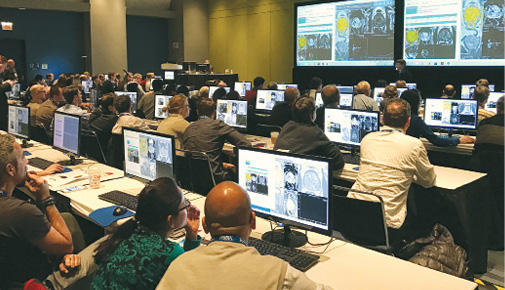 A prostate MRI session at RSNA 2016 drew a capacity crowd