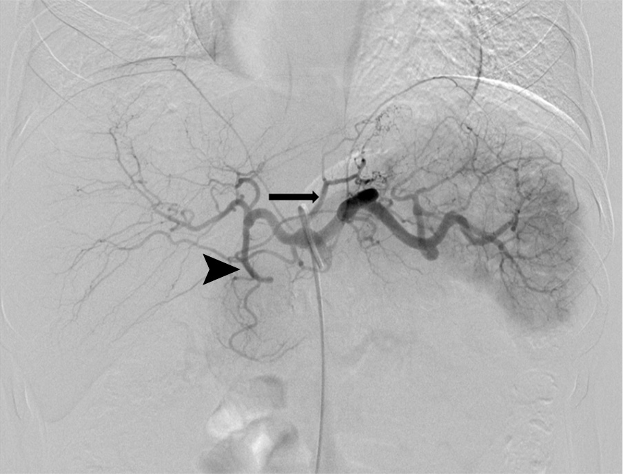Example of bariatric embolization