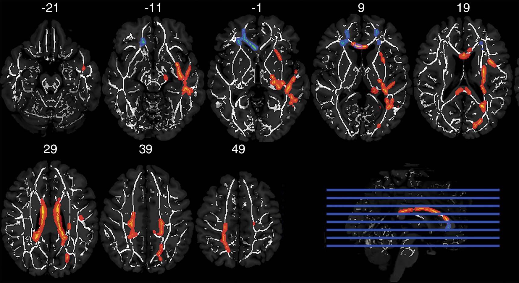 Axial MRIs