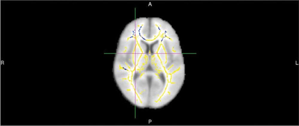 Brain News Release