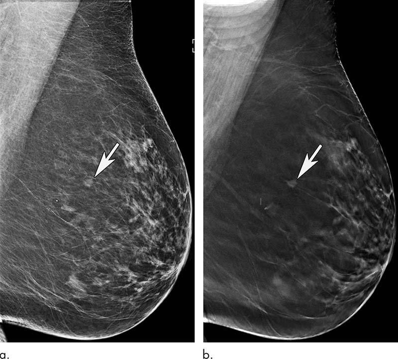2D mammography
