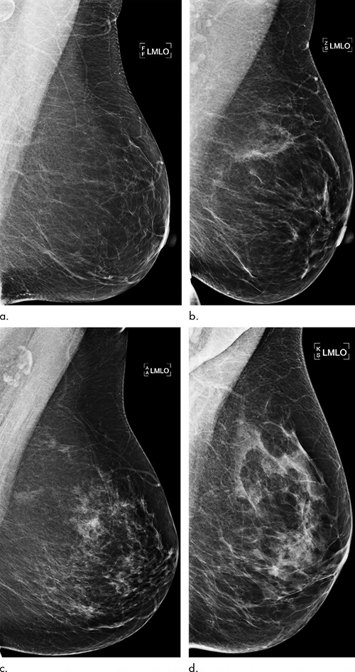 Breast-Radiology-2
