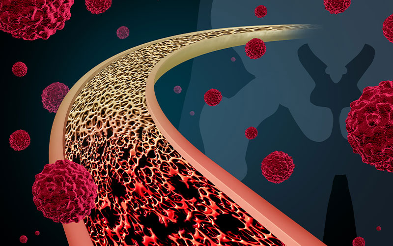 bone metastasis feature