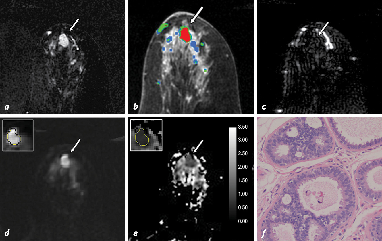Images in 61-year-old woman with a personal history of right-breast ductal carcinoma in situ
