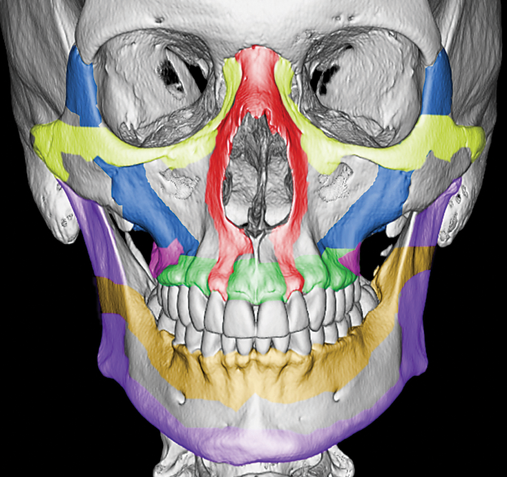 Spectrum of Critical Imaging Findings in Complex Facial Skeletal Trauma