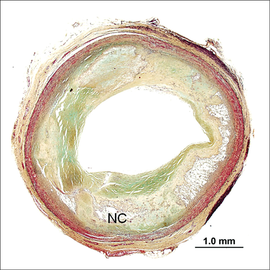 Low-power photomicrographs of severely atherosclerotic coronary artery