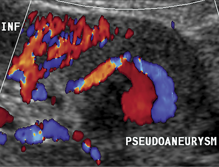 Pseudoaneurysm in a 14-year-old female after renal transplantation