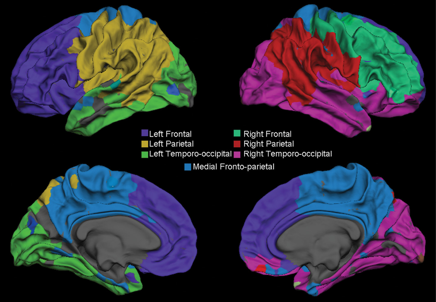Surface representation shows the gray–white matter junction
