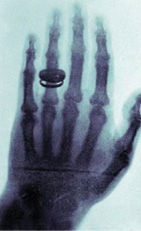 X-ray Discovery 1895