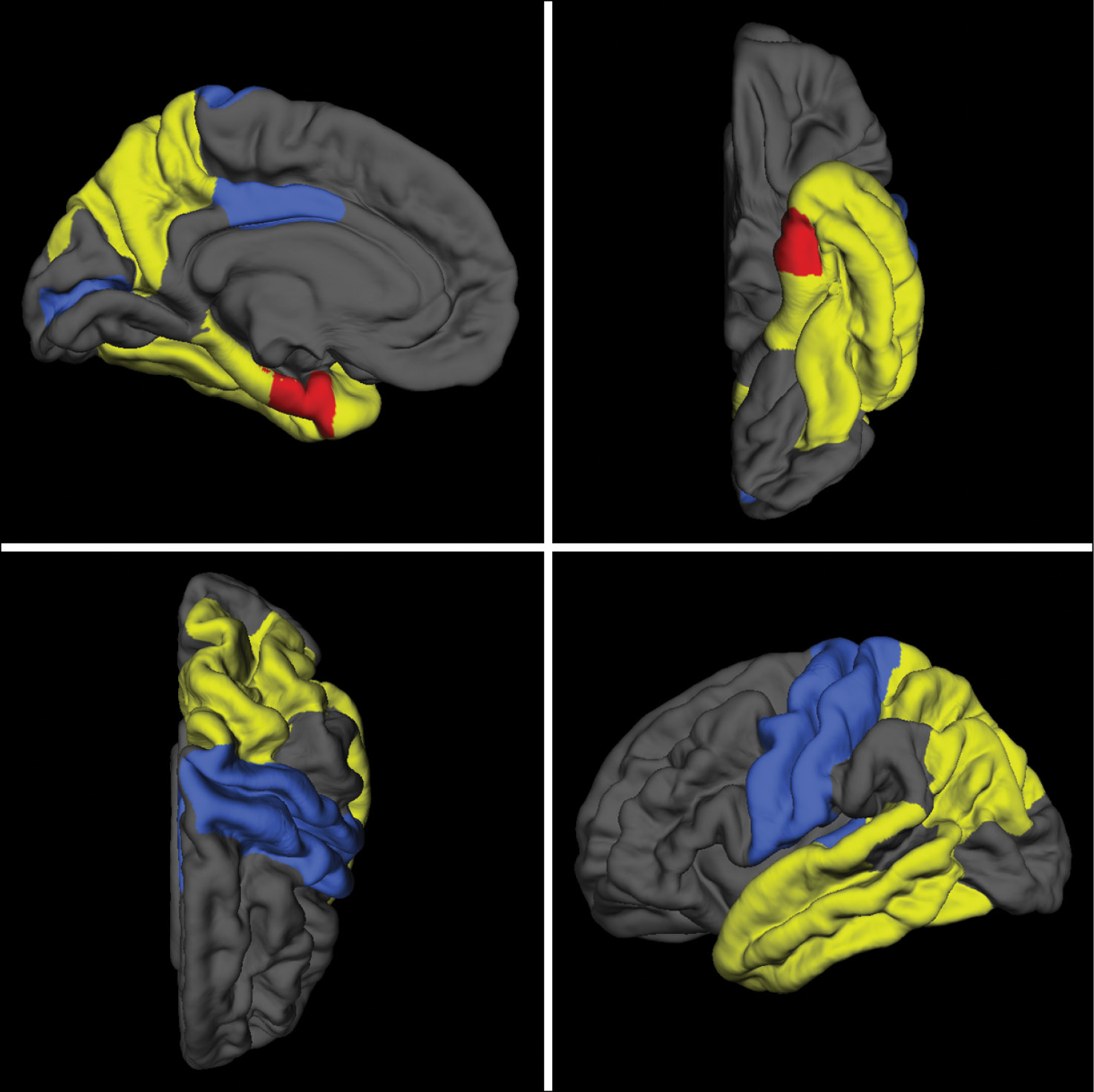 Medial, inferior, superior and lateral images of a 3D FreeSurfer reference brain model