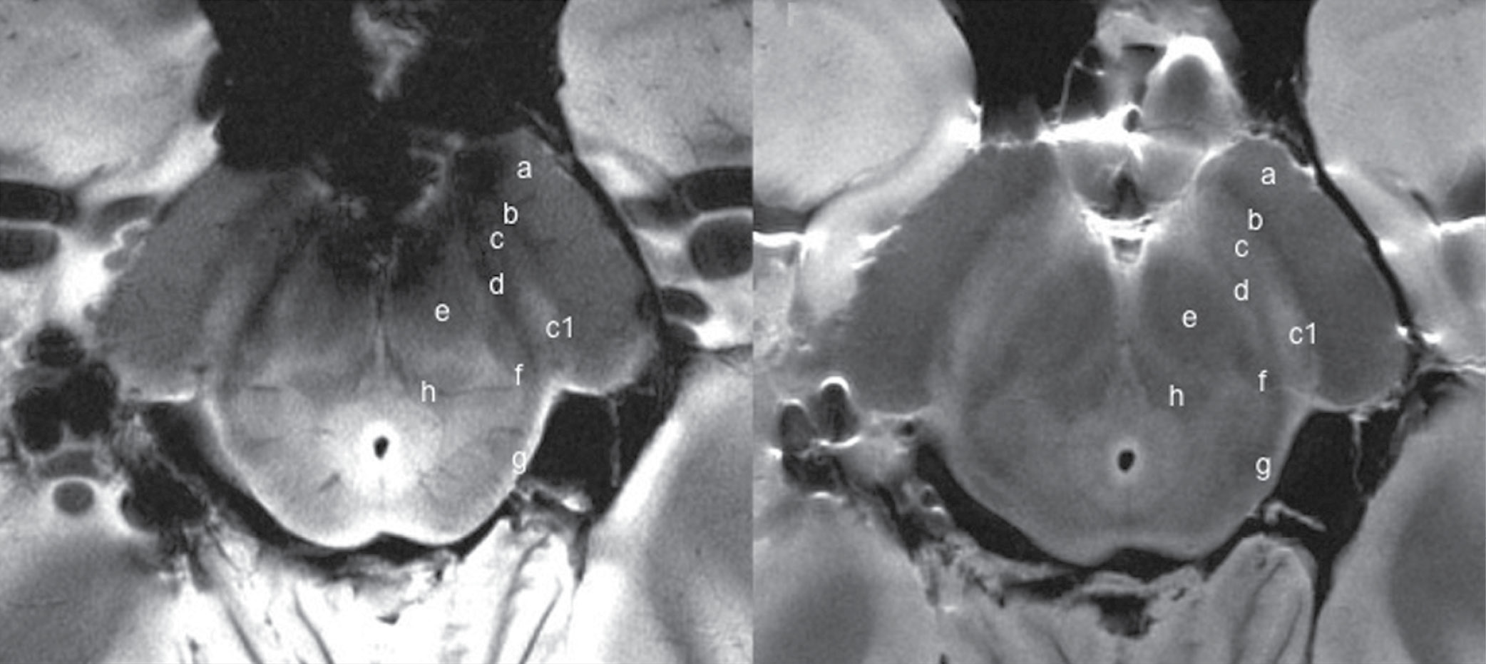 Transverse gadolinium-enhanced T1-weighted MR images obtained superior to the carotid artery bifurcation