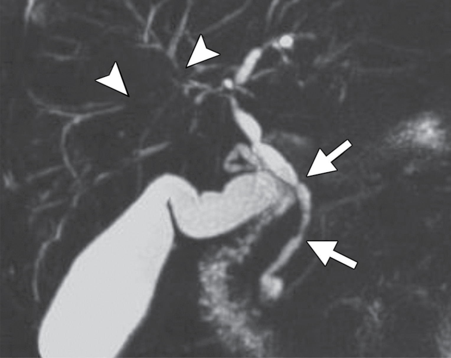 Primary sclerosing cholangitis in a 63-year-old man