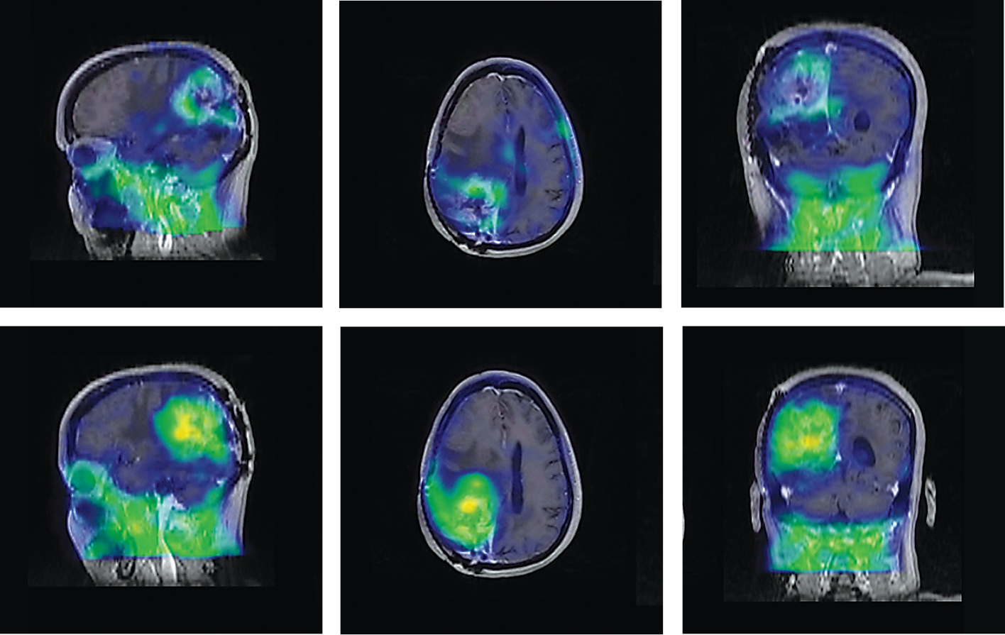 18F-FHBG head PET images superimposed over corresponding MRI images