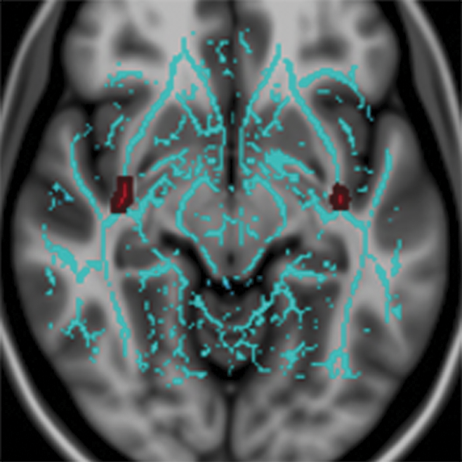 UF, an important tract connecting the two extrahypothalamic regions
