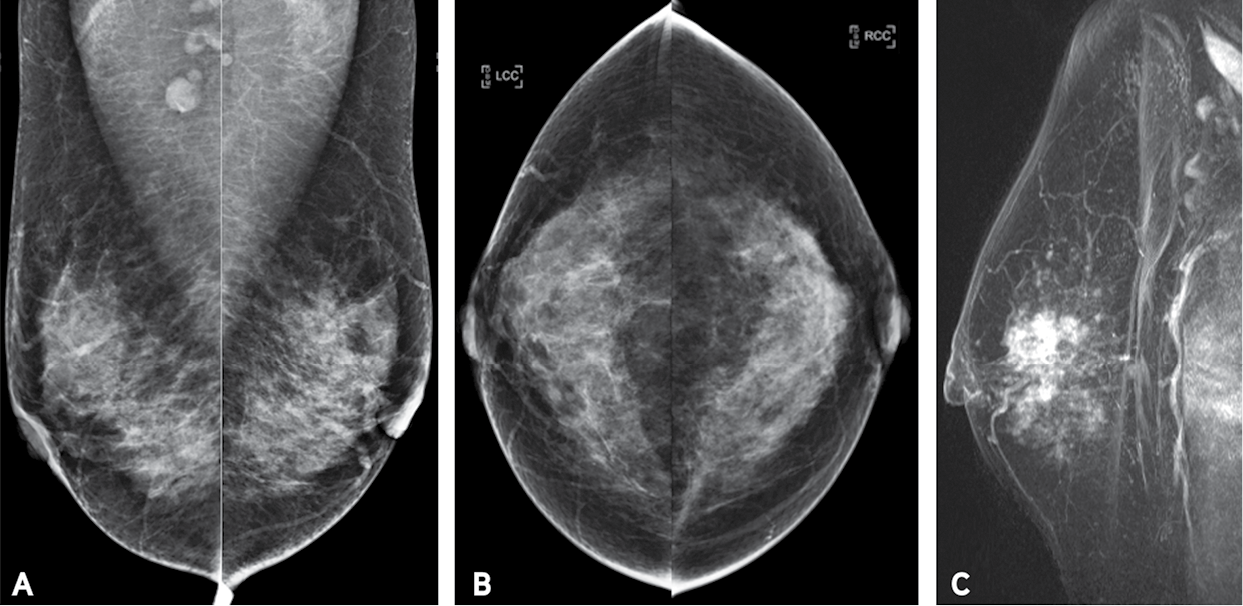 IDC in a 42-year-old woman. Bilateral MLO (a) and craniocaudal (b) screening DM images