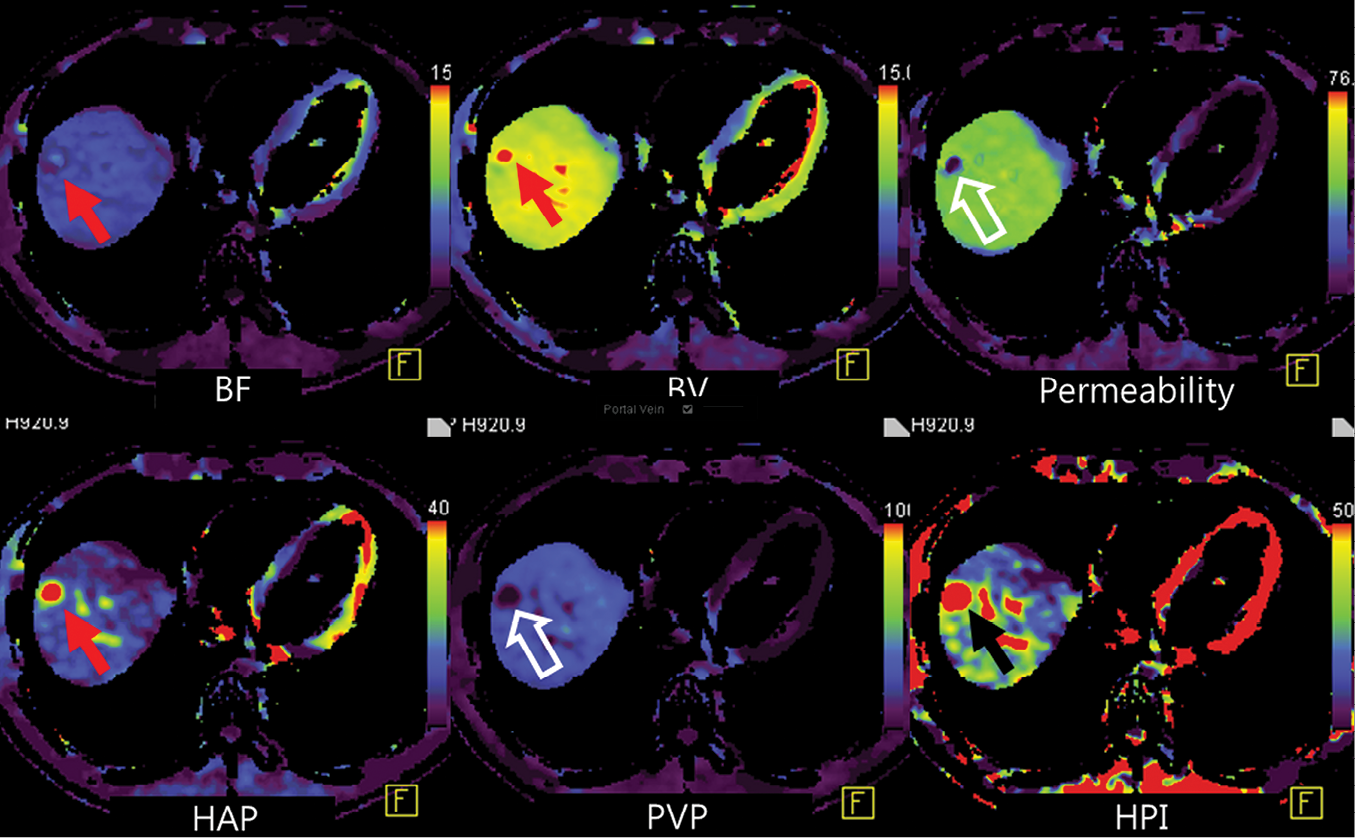 Perfusion software used in this example automatically generates color-coded perfusion maps of entire liver