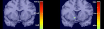 Brain Imaging Improves Understanding of Cigarette Addiction